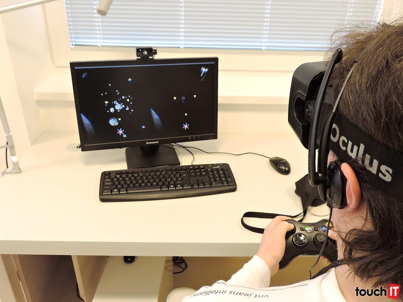 c98ec50c9 Pacient počas liečby. Všimnite si monitor, ktorý je rozdelený do dvoch  častí. Presne
