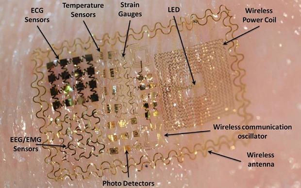 Aj takto nenápadne môže vyzerať zariadenie, ktoré budeme čoskoro nosiť na tele. A neskôr aj pod kožou. Nahradí heslá